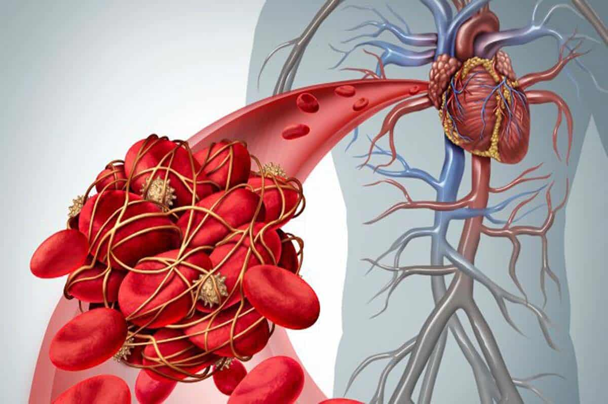 Thrombosis-and-Heart-Banner-1200x798.jpg